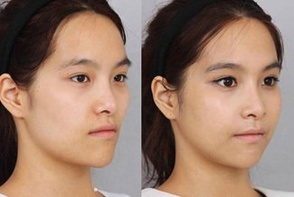 Facial enhancement using Facial Fillers
