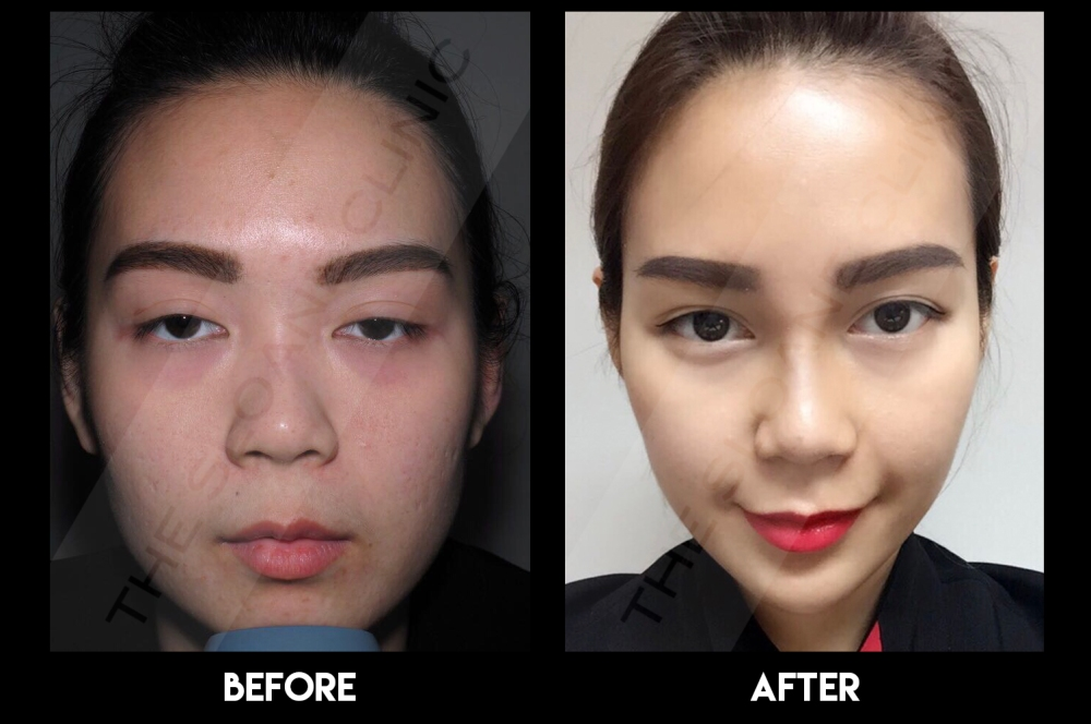 Nose Threadlift Before & After(Photo courtesy of The Sloane Clinic)