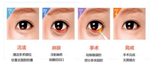 眼袋切除手术.jpeg